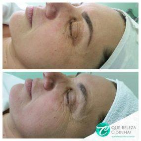 Microagulhamento, a solução para peles envelhecidas
